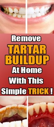 Remove Tartar Buildup With Backing Soda – Be Your Own Dentist