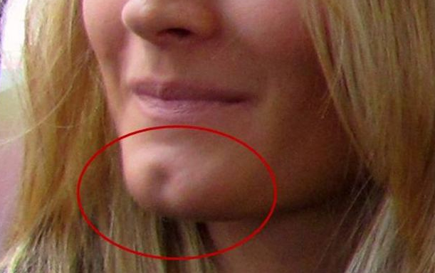 image showing how a butt chin looks