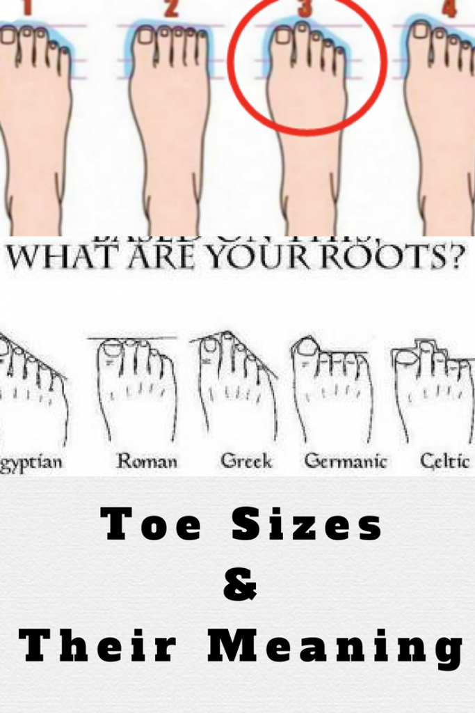 Second toe longer than big toe