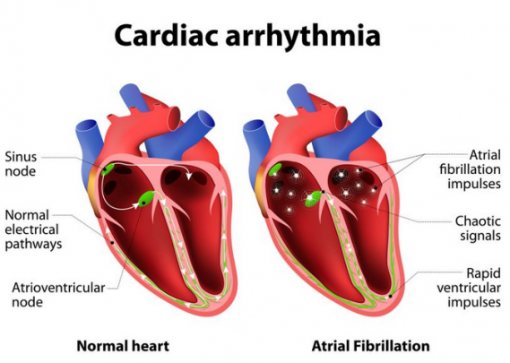 cardiac arrhythmia heart meaning