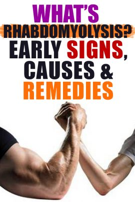 Although, a lot of people who visit the #gym suffer from aches in their #muscles some days after the #exercise, #rhabdo begins not long after or while the workout is on: swollen muscles, nausea, vomiting, etc.