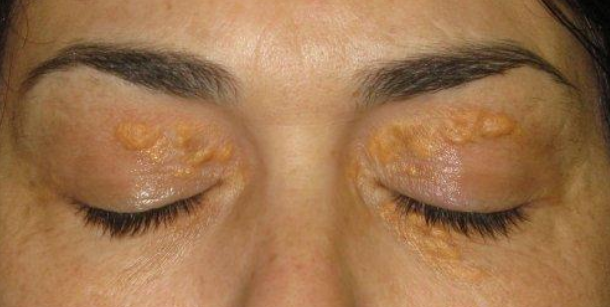 Photo of Xanthelasma: Cholesterol Deposits Around The Eyes: Causes & Treatment