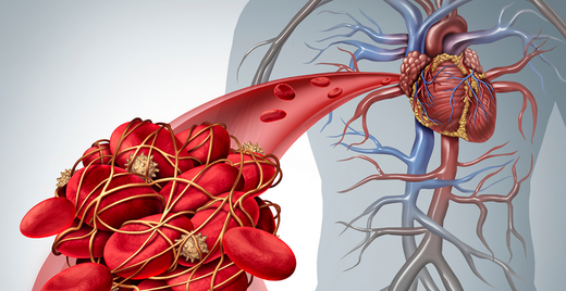 the connection between diabetes and blood clots