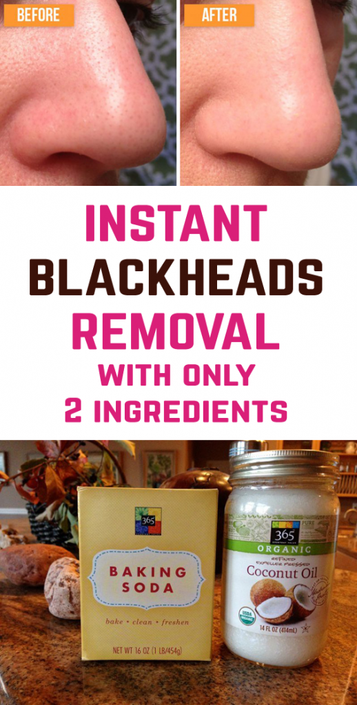 Homemade remedy for blackheads. The recipe is actually a cleansing mask containing 2 simple natural products