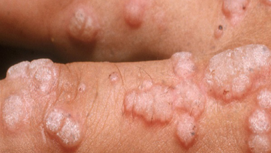 image of infection with HPV