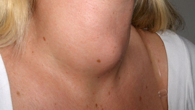 Photo of Neck Lumps: Early Symptoms, Causes & Treatment