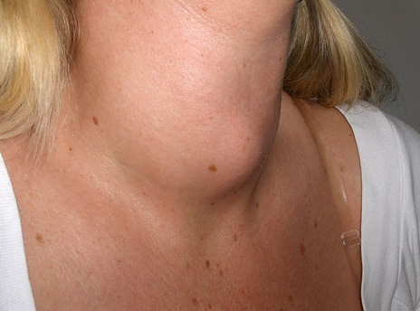 a women with a lump on her neck