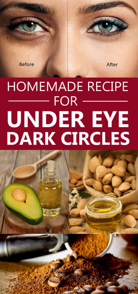 How to remove dark circles under the eyes, naturally? It's rather more than simple.