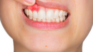 image of inflamed gums