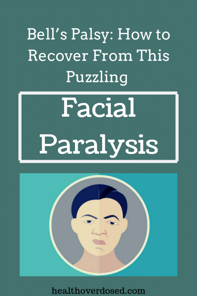 Part of the face becomes paralyzed because of damage or inflammation in the nerve that controls the muscles on either side of the face – the muscles you use to smile, blink and scrunch up your nose.