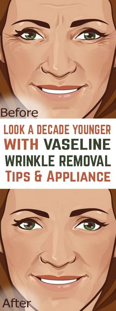Vaseline Comes to The Rescue - Eradicate Wrinkles Now!