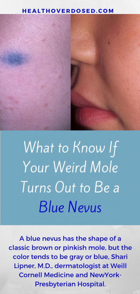 I've been anxious that it's not just a blue mole, but maybe, idk, cancer? But, thankfully no. Instead, my dermatologist tells me, it's a blue nevus—a (usually harmless) type of mole that has a unique gray or blue color.