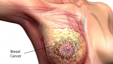 image of a breast cancer