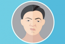 Photo of Bell's Palsy: How to Recover From This Puzzling Facial Paralysis