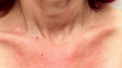 image of a women with sebaceous (oily) glands