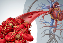 Photo of Life-Threatening Link Between Diabetes & Blood Clots – What's in Common?